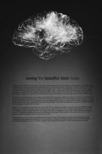 認知症 読書 認知症に読書は効果的